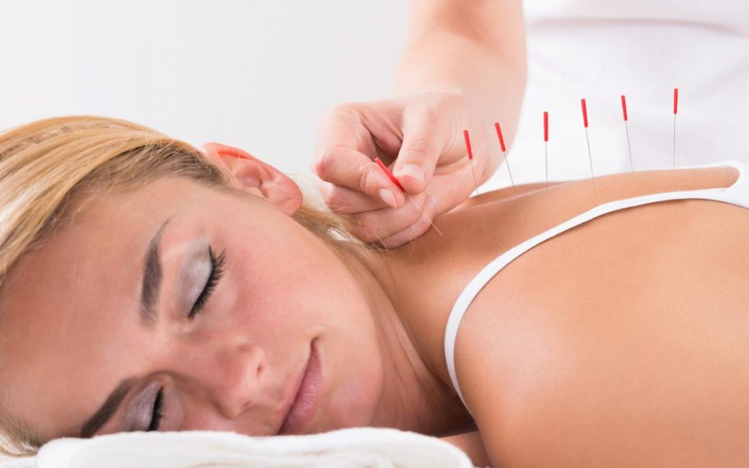"""The Positive """"Side Effects"""" of Acupuncture!"""